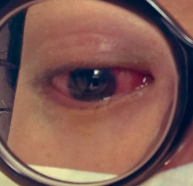はやり目(結膜炎)で目が真っ赤!目やにと熱に悩み、病院で治療した奮闘記の画像7