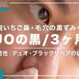 DUO(デュオ)の黒で3ヶ月、いちご鼻・黒ずみは改善された?